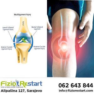 Povrede meniskusa i ligamenata, fizikalna terapija, reh