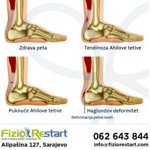 Ahilova tetiva, fizikalna terapija, rehabilitacija