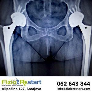 Endoproteza, kuk, koljeno,fizikalna terapija, rehabilit