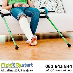 Rehabilitacija nakon preloma, fizikalna terapija