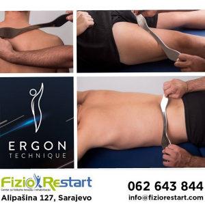 Tretman ergon tehnikom