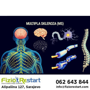 Multipla skleroza, fizikalna terapija, rehabilitacija