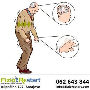 Parkinsonova bolest, fizikalna terapija, rehabilitacija